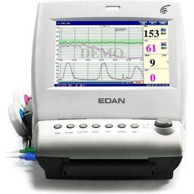 Edan F6 Single Fetal Monitor